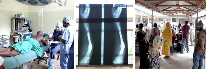 huntington orthopedic outreach program faq