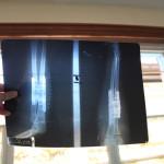 huntington-orthopedic-outreach-program-04